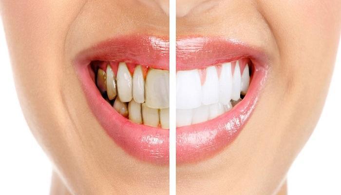 تعرف على الأسباب المؤدية لسقوط حشوة الأسنان وتكسرها
