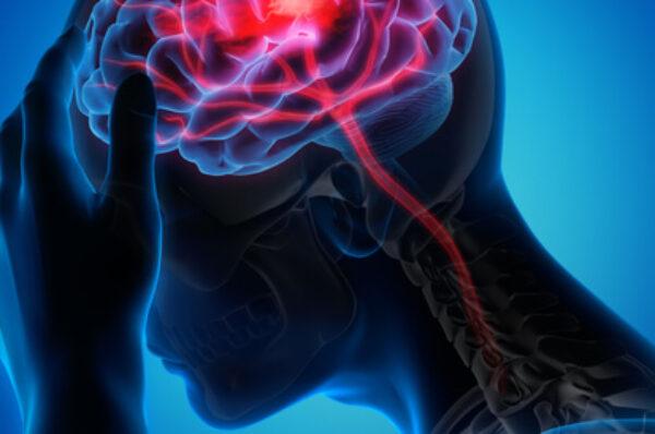 أهم أعراض الجلطة الدماغية والغيبوبة